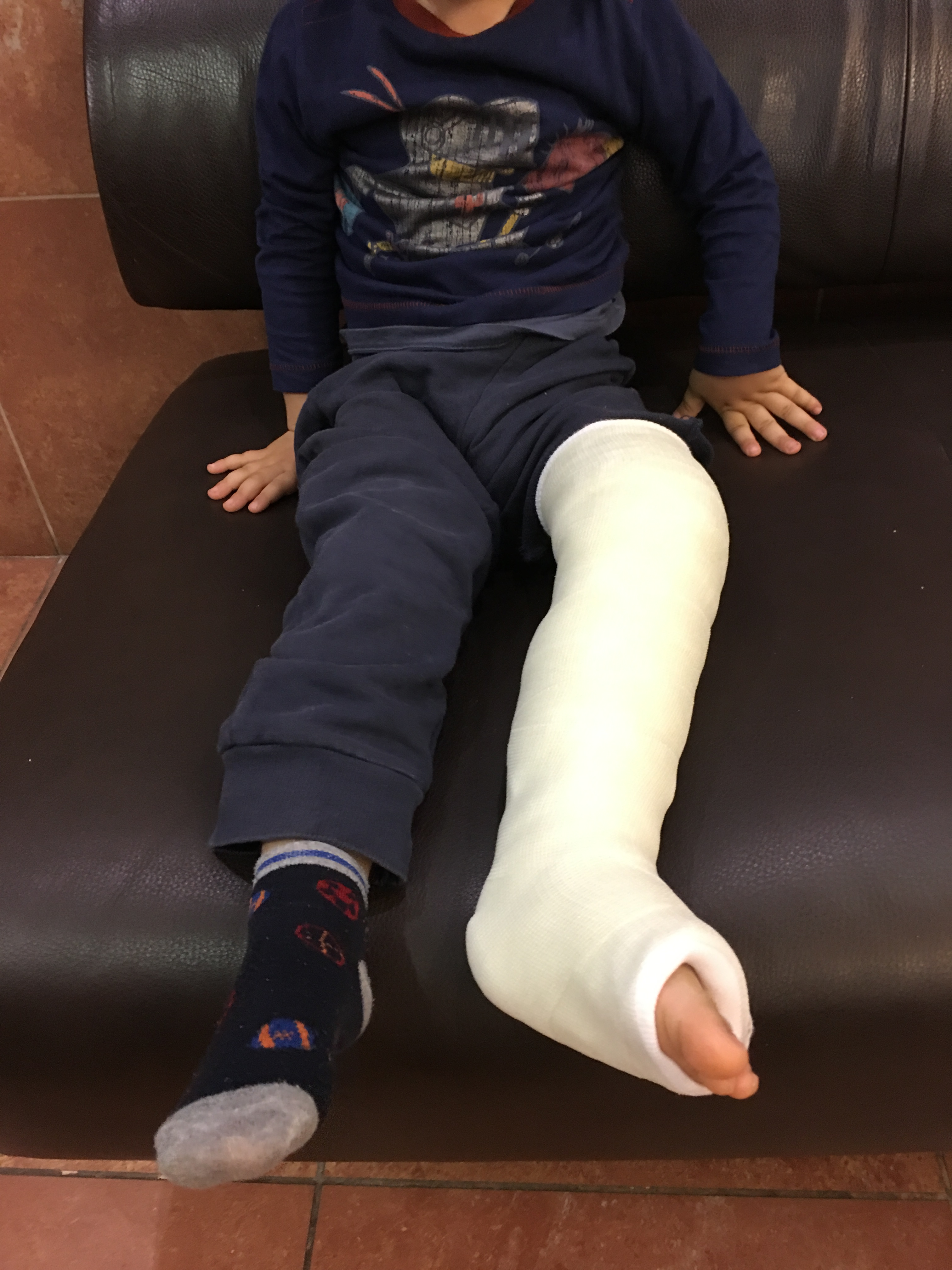 Kid with a casted leg